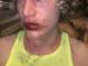 Vercellese di 19 anni aggredito a Valencia