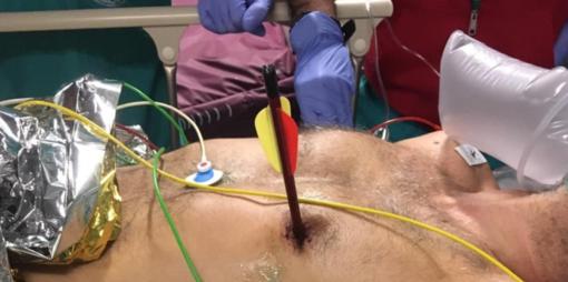 Arriva in ospedale con una freccia piantata nel cuore