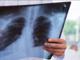 Radiologia a domiclio per i pazienti disabili o non autosufficienti
